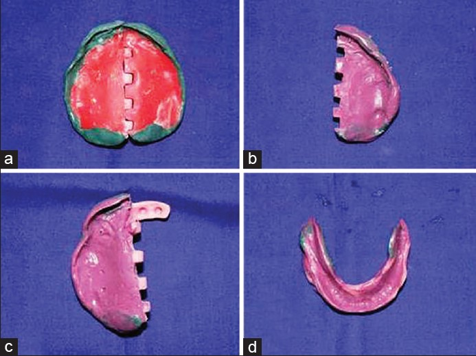 Figure 4: (a) Peripheral molding of the maxillary impression sectioned trays, (b and c) final impression recorded with monophase impression material, (d) mandibular sectional trays joined after the final impression