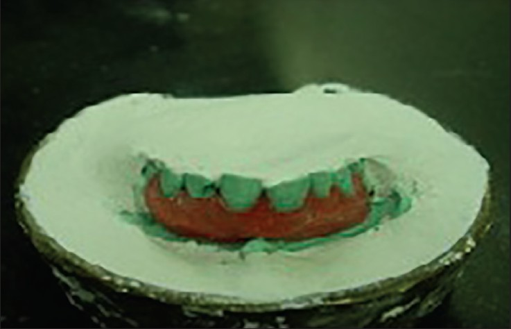 Figure 2: Wax-up of the gingival mask