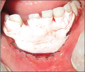 Figure 6: Periodontal dressing placed