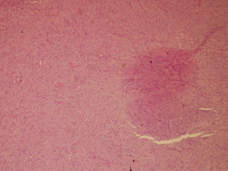 Figure 5: Spindle cells on H & E staining (×10)