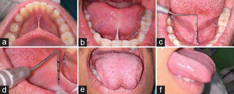Figure 1: Postoperative (a) occlusal view, (b) labial view, (c) length of frenum – labial view, (d) length of frenum – lateral view, (e) on tongue protrusion – frontal view, (f) on tongue protrusion – lateral view